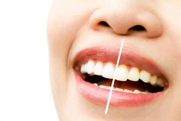 دلیل اصلی بدرنگی و زرد شدن دندان ها چیست؟