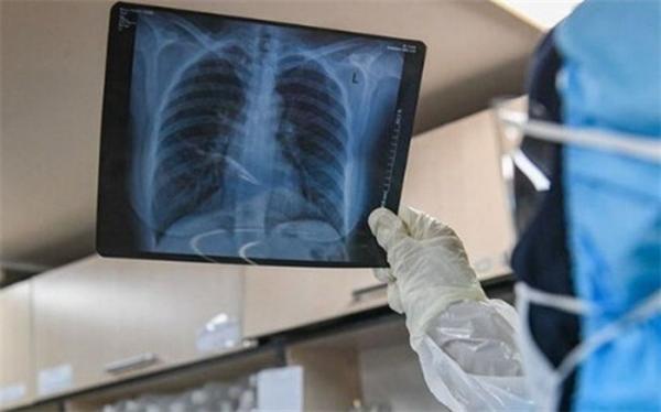 علائم درگیری ریه در مبتلایان کرونا چیست؟